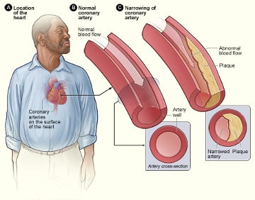 man with atherosclerosis
